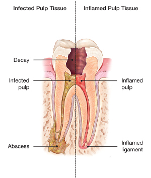abscessed-tooth.jpg