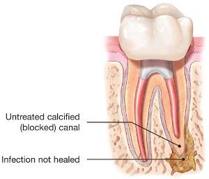 endodontic-retreatment-tooth-abscess.jpg