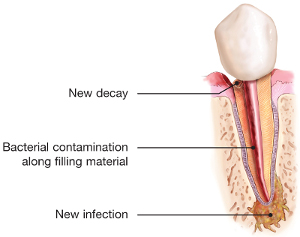 endodontic-retreatment-tooth-infection.jpg