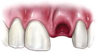 Knocked-Out-Teeth.jpg