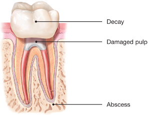 Root-Canal-Damaged-Pulp.jpg